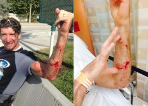 Kurt Hoffman was bitten by a shark while kite surfing off Delray Beach, Fla.